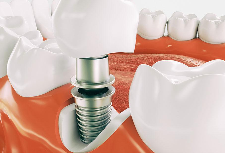 leistungen-implantologie